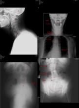 脊柱管狭窄症 変形性膝関節症