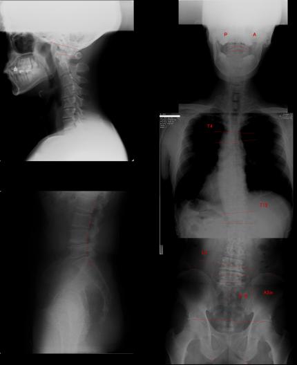 椎間板ヘルニア 脊柱管狭窄症
